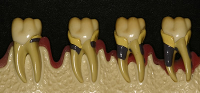 歯周病の病態模型