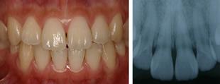 健康な歯肉の一例