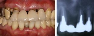 重度歯周炎の一例