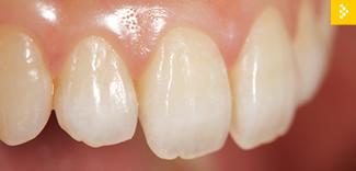 女性のための審美歯科